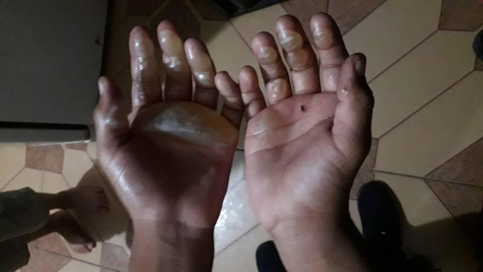 e09e59ddd5151e Criança de 9 anos tem mãos queimadas com ferro de passar e mãe será ...