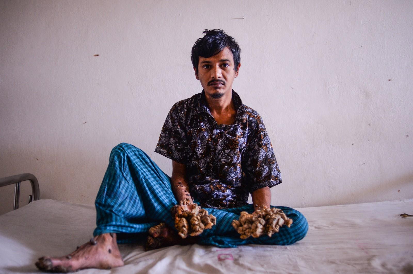 Abul Bajandar tem 28 anos e sofre de epidermodisplasia verrucosa, uma condição genética muito rara — Foto: Munir UZ ZAMAN / AFP