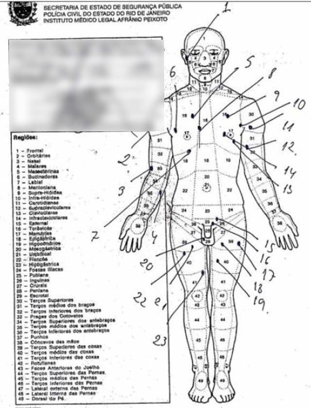 Laudo mostra que corpo de pastor Anderson tem 30 marcas de tiros — Foto: Reprodução