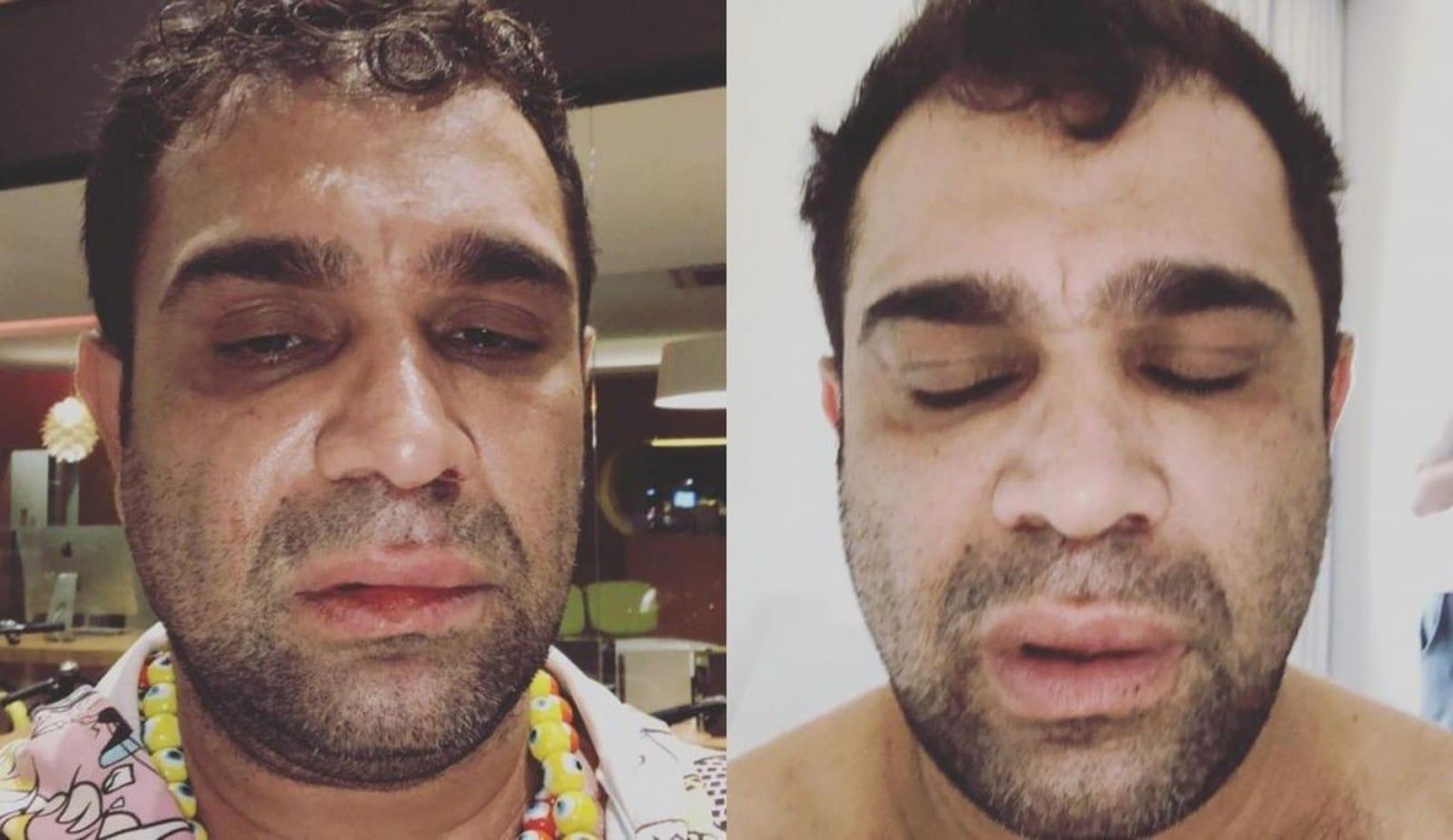 Evandro Santo, ex-Pânico, registrou boletim de ocorrência por agressão em show realizado em Marília — Foto: Facebook/Reprodução