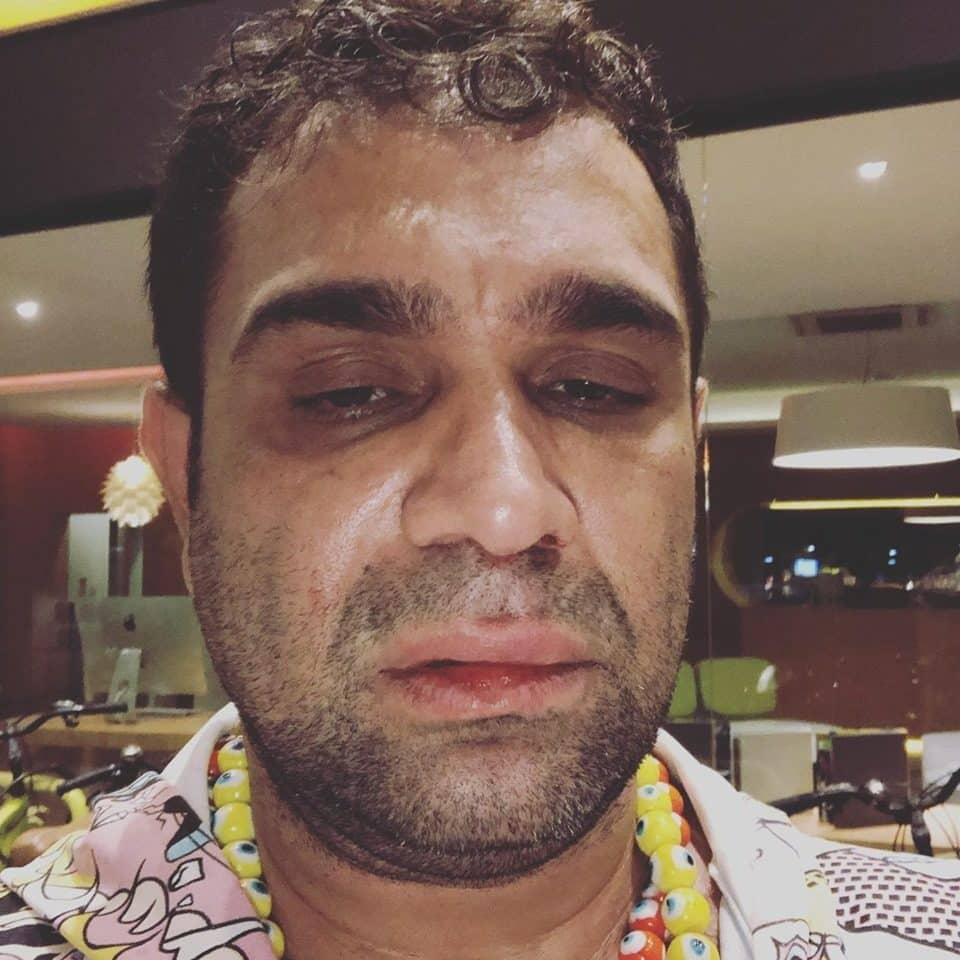 Evandro Santo levou um soco no rosto após show de humor (Foto: Divulgação)
