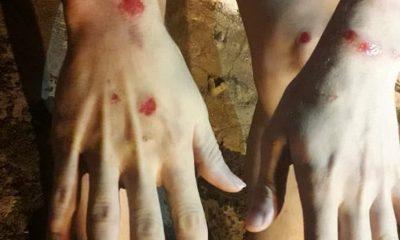 Jovem registra BO após ser agredido por grupo em Tupã; ele alega homofobia — Foto: Arquivo pessoal