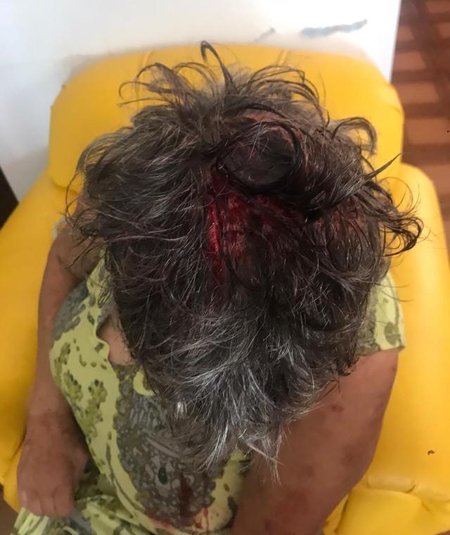 Mulher foi agredida com facão no braço e na cabeça — Foto: Polícia Militar