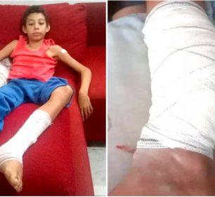 """Vinícius Gustavo de Oliveira, de 11 anos, em recuperação após ficar com uma barra de ferra cravada na perna: """"Tive medo"""" - Foto: Arquivo pessoal"""