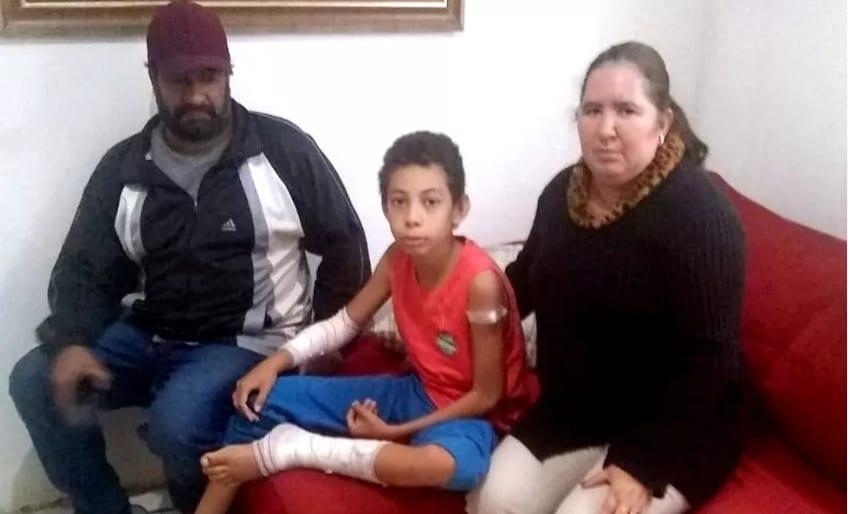 Vinícius com o pai e a madrasta, durante sua recuperação em casa: 60 pontos para fechar ferimentos na perna e no braço - Foto: Arquivo pessoal